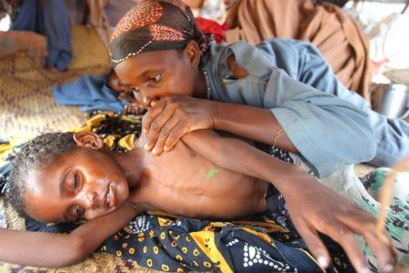 Starving-Somalia-child-03062017